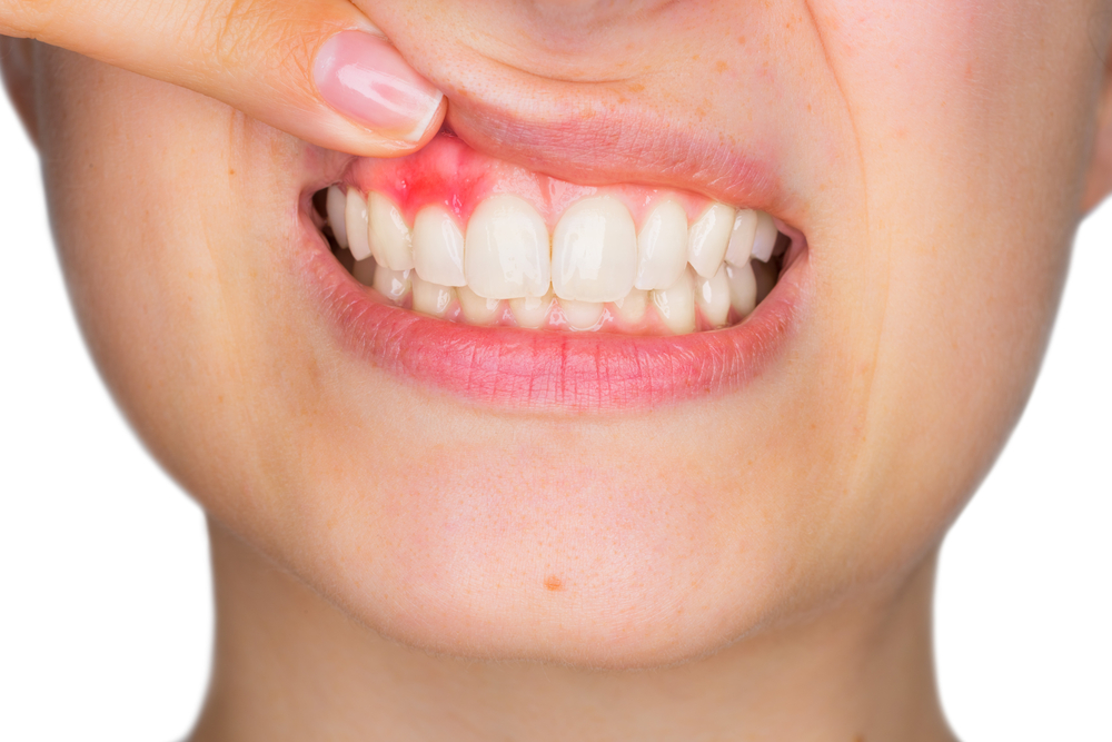 Abscessed Tooth Treatment